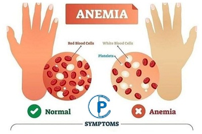 Top Causes of anemia in 2021